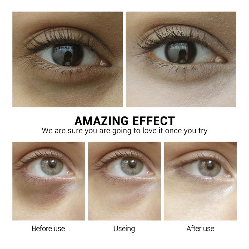 Details about Lanbena Hyaluronic Acid Eye Mask Hydrogel Eye Patch Skin Care  Dark Circles Ba YB